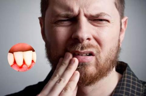 Gum Bleeding Isn't Normal! Don't Ignore This Warning Sign Of Dental Disease
