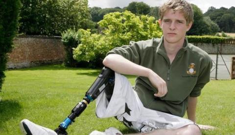 Kisah Haru Tentara Inggris yang Tidak Membenci Islam Meski Kedua Kakinya Dihancurkan Teroris