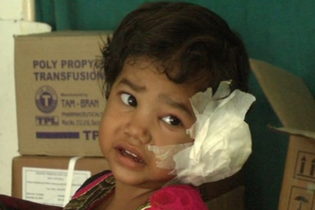 Radhika Mandloi had to endure two sittings to remove the 80 worms, each lasting 90 minutes
